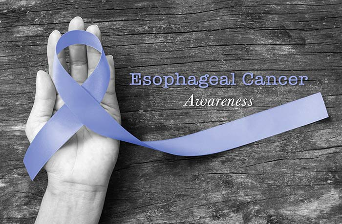 A Closer Look at Esophageal Cancer